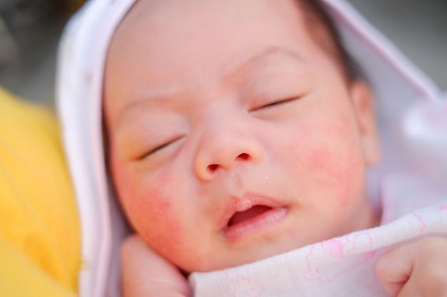新生児のクローズアップの肖像画。顔の赤ちゃんの発疹