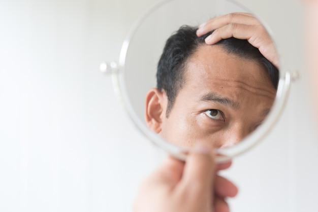 男性は脱毛を心配しています。