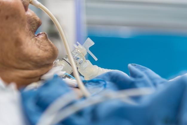 患者は気管切開術および人工呼吸器を病院で行う
