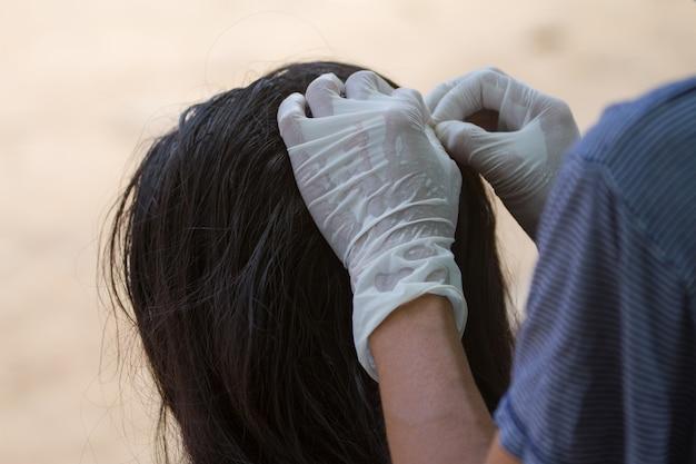 Женщина применяет лечение педикулеза к своей дочери