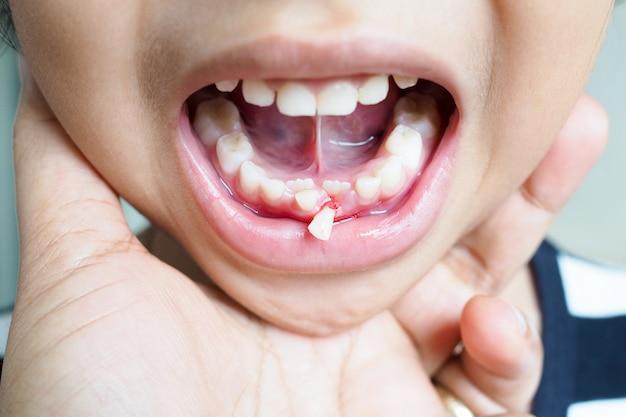 歯を持つアジアのタイの女の子の子供の赤ちゃんの歯は、歯茎、子供の歯の健康上の問題から脱落しました。