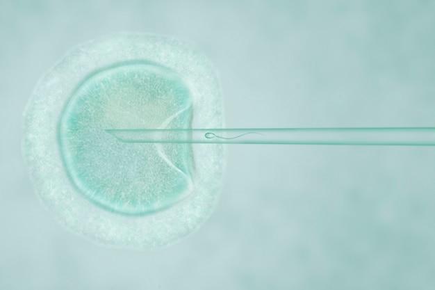 細胞質内精子注入による人工授精