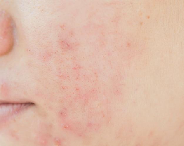 顔面と肌の問題にきび傷跡