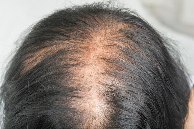 薄い髪と頭皮の問題と壊れた髪