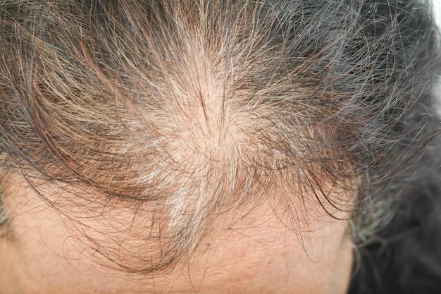 老人の薄い毛