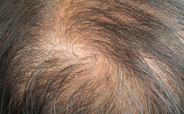 薄い髪と頭皮と壊れた髪