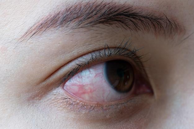 女性の赤目、結膜炎の目、または泣き声の後