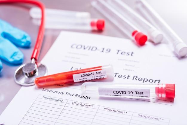 Ученые, изучающие лекарство от ковидной болезни, вызванной вирусом, тестируют в лабораториях.