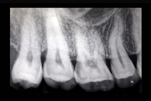 Рентген зубов, рентген крупного плана зубов показывает проблему с зараженной десной и поврежденным корнем.