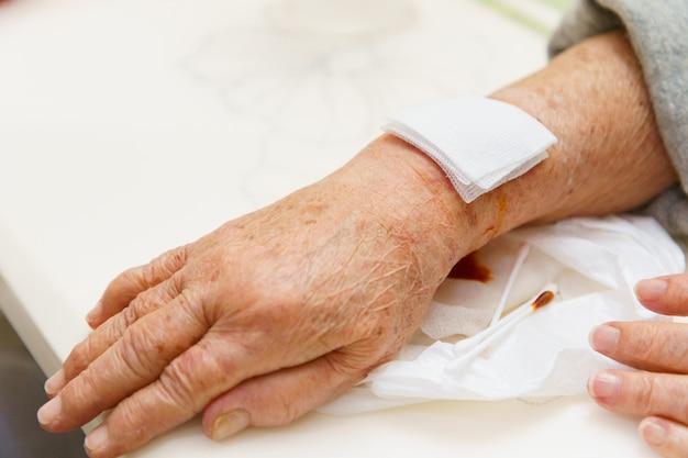 看護師の治療を待っている負傷者に年配の女性の手、上肢または腕を閉じる