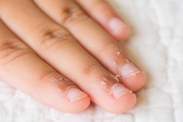 乾燥した皮膚、湿疹皮膚炎で子供の指を閉じます。