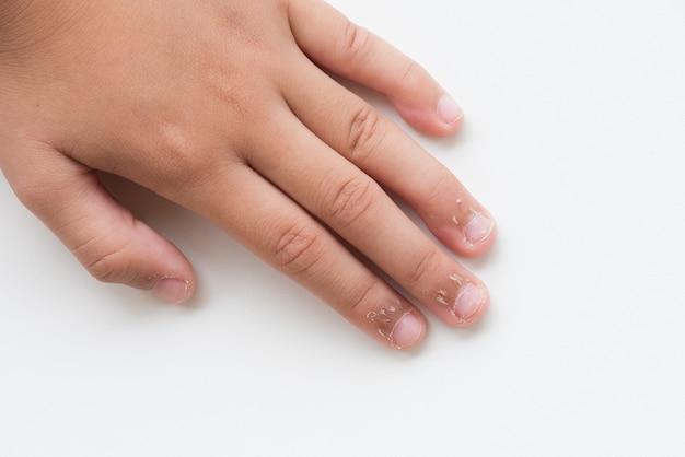 乾燥した皮膚、湿疹皮膚炎で子供の指を閉じます