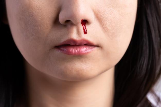 鼻血、血まみれの鼻を持つ女性、ヘルスケアの概念。