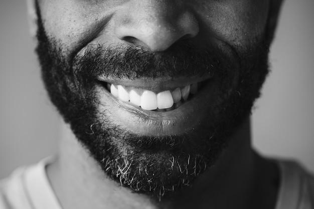 男の笑顔の歯の拡大