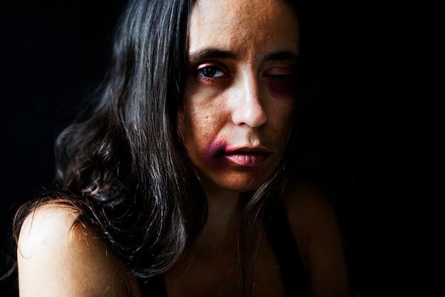 虐待された女性