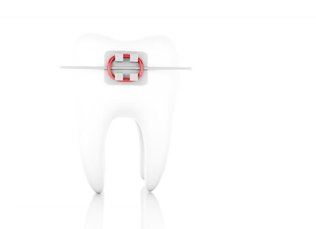 ブレース付きの歯。