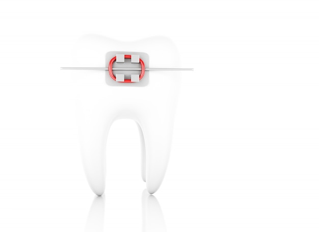 Зуб с брекетами.