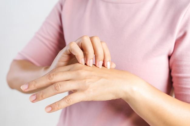 彼女の手にかゆみを掻く若い女性のクローズアップ。ヘルスケアと医療の概念。