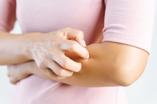 彼女の腕のかゆみを掻く若い女性のクローズアップ。ヘルスケアと医療の概念。