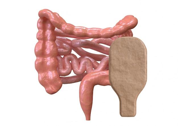 Колостомический мешок, связанный с кишечником, изолирован