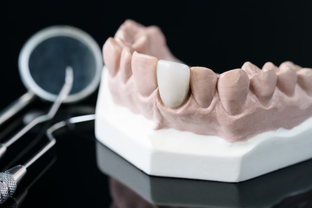 歯科矯正歯科医および歯科医のツール - 歯科補綴物のデモンストレーション歯モデル