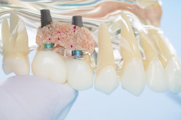 歯を示す学習教授モデルに対する学生のためのインプラントおよび歯列矯正モデル。