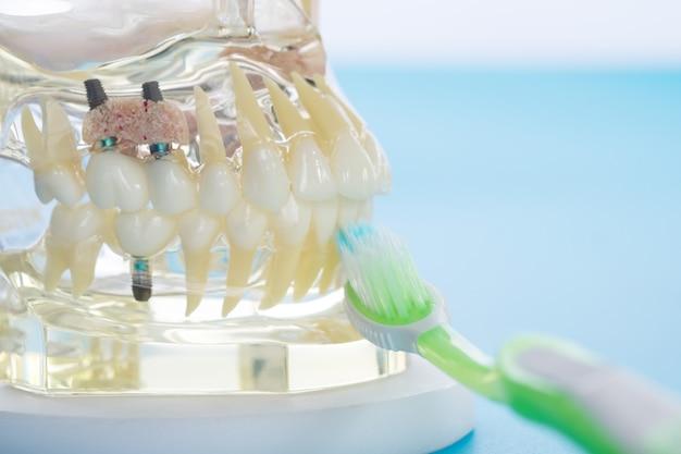 歯を示す学習教授モデルに対する学生のためのインプラントおよび歯科矯正モデル。
