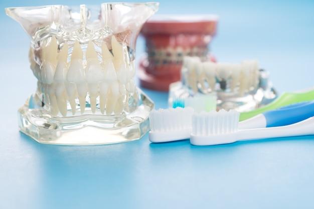 歯を見せる学習指導モデルへの学生のためのインプラントと歯列矯正モデル。