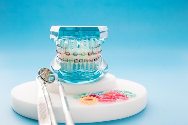 青色の背景に歯列矯正モデルと歯科医のツール