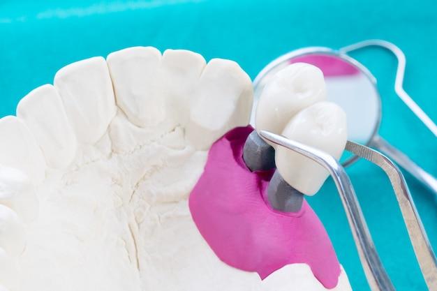 インプランモデルの歯のサポートでブリッジのインプラントとクラウンを修正します。