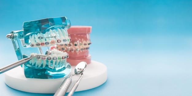 歯列矯正モデルと歯科ツール - 歯列矯正ブラケットまたはブレースの種類のデモンストレーション歯モデル