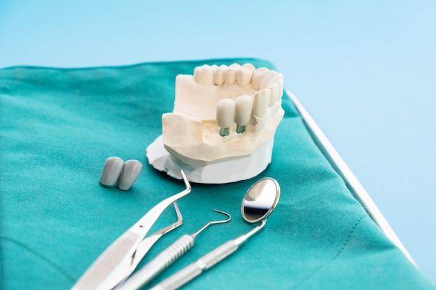 インプラントモデルの歯のサポートは、ブリッジのインプラントとクラウンを修正します。
