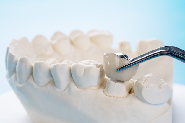 インプランモデルの歯のサポートを閉じるブリッジのインプラントとクラウンを修正。