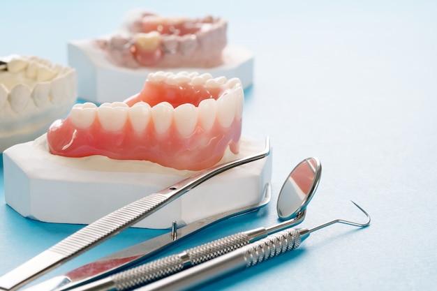 クローズアップ、総義歯または総義歯青。