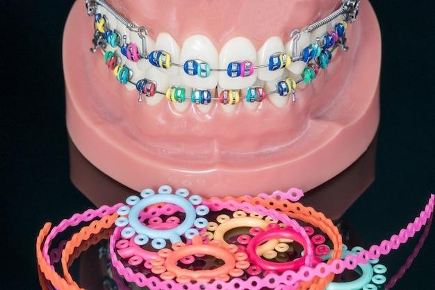 歯列矯正モデル - 歯列矯正ブラケットまたはブレースの種類の実演歯モデルを閉じる