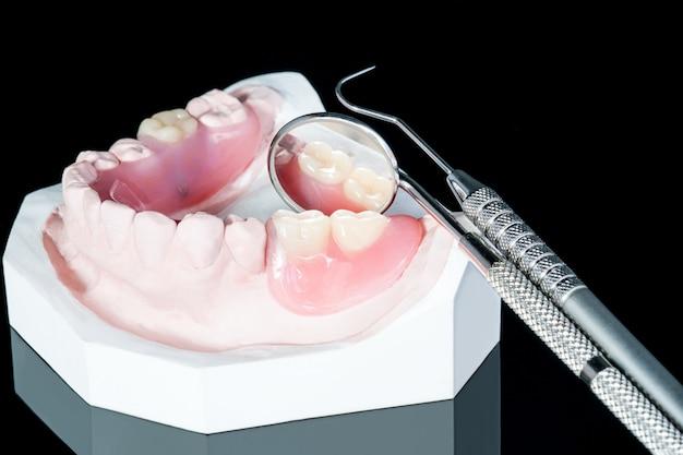 黒い地面にクローズアップ、人工の取り外し可能な部分義歯または一時的な部分義歯。
