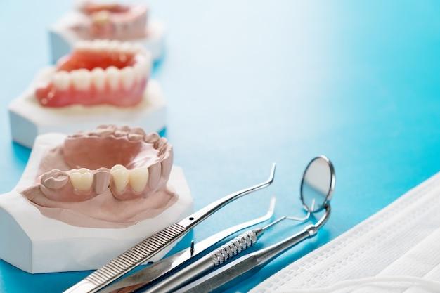 青い地面に人工の取り外し可能な部分義歯または一時的な部分義歯。