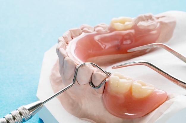 クローズアップ、人工の取り外し可能な義歯または一時的な義歯を青地にします。