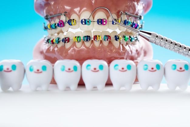 Ортодонтическая модель и инструмент стоматолога - демонстрация модели зубов с различными ортодонтическими скобками или скобами