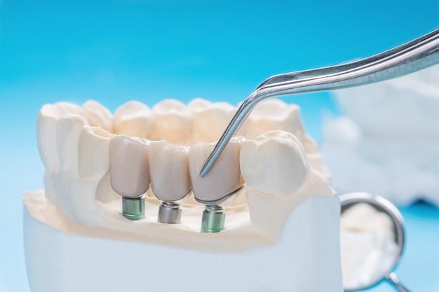 Закройте модель импланта, опору зуба исправьте мостом имплантом и коронкой.