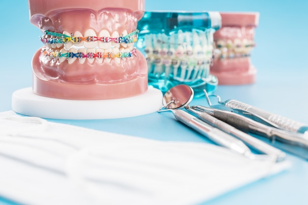 歯科矯正モデルおよび歯科医ツール-さまざまな歯科矯正ブラケットまたはブレースの歯モデルのデモンストレーション