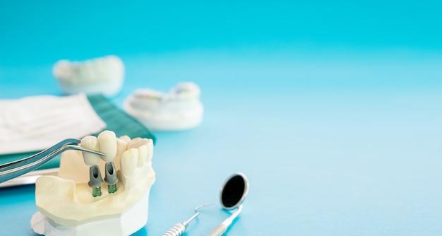 Модель импланта зубной опоры фиксирует мостовой имплант и коронку.