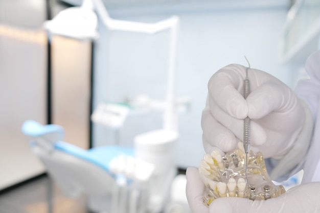 歯科医は彼の手で/オフィスまたは診療所でインプラントモデルを示します。