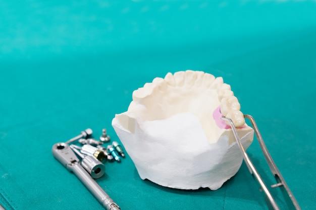 インプランモデルの歯のサポートは、ブリッジインプランとクラウンを修正します。