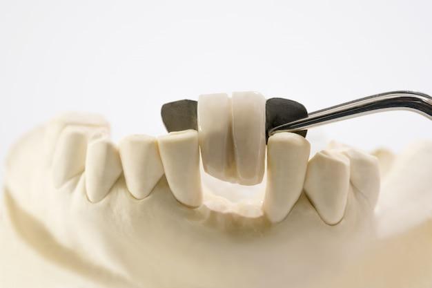 クローズアップ/歯科用メリーランドブリッジ/クラウンおよびブリッジ機器とモデルエクスプレスフィックス修復。