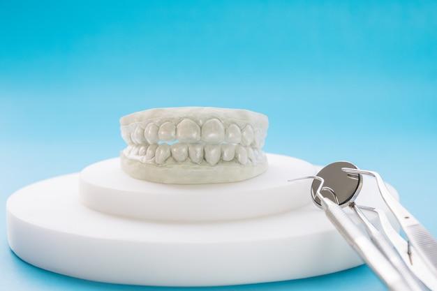 Стоматологический фиксатор ортодонтического аппарата на синем фоне.