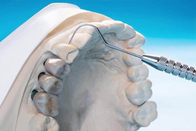 インプラントモデルの歯のサポート修正ブリッジインプラントとクラウンを閉じます。
