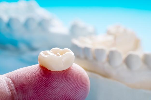 クローズアップ/補綴または補綴/単一の歯冠およびブリッジ装置モデルは、修復修復を表現します。