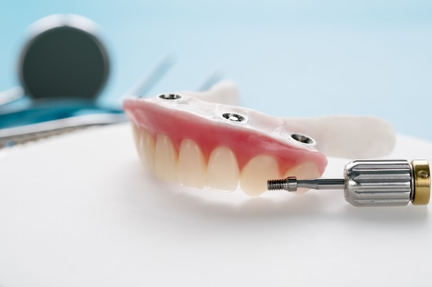 歯科インプラントは、青の背景にオーバーデンチャーをサポートしていました。