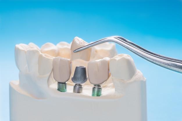 インプラントモデルの歯のサポートを修正ブリッジブリッジとクラウンを修正します。